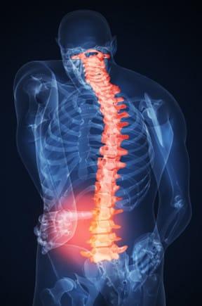 Back Pain Spine