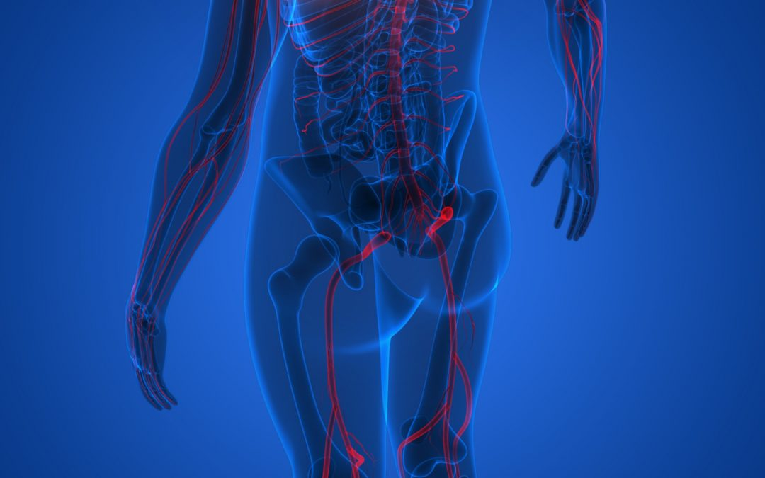 What you need to know about sciatica and how to get relief from sciatic pain.